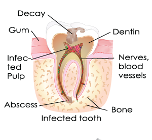 Root Canal in Bergenfield, NJ and Dumont, NJ
