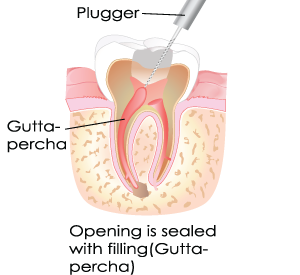Root canal in Dumont, NJ