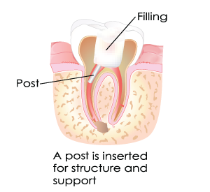 Inserted Posts During Root Canal Treatment in Dumont, NJ
