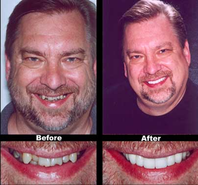 Smile Makeovers at Dumont Dentist