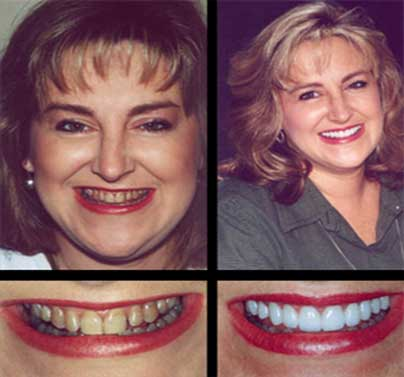 Restore Your Smile With Smile Makeover at Dumont Dentist